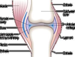 Bild på uppbyggnad av en led - Reumatoid artrit (RA), ledgångsreumatism, kännetecknas av en kronisk inflammation i kroppens leder.