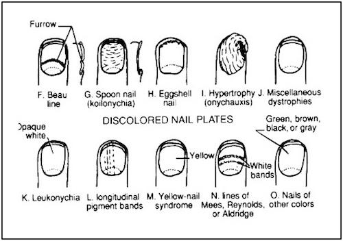 Nageldiagnostik - vad kan naglarna visa